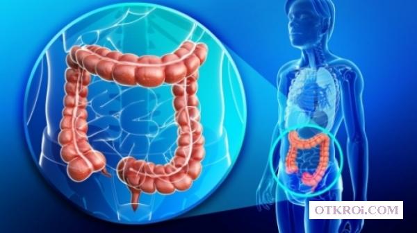 Рак кишечника (колоректальный рак)