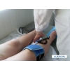 Лечение артритов и артрозов в Саратове