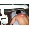Безоперационное лечение позвоночника и суставов